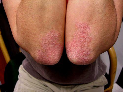 Psoriasis Skin Symptoms