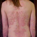 psoriasis fee image