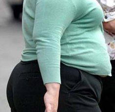 Obese_Woman_2