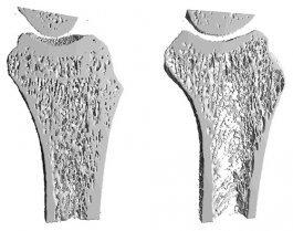 Osteoporosis_1