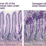 celiac-disease-villi-normal