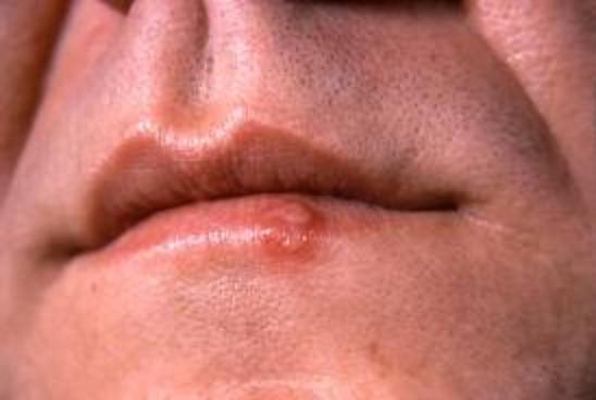 Eventually the herpes infection settles down, and the person experiences flare-ups ranging from very occasionally to very rarely 1