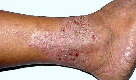 eczema_of_leg_1
