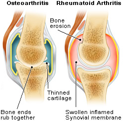 steroids-effective-in-rheumatoid-arthritis1