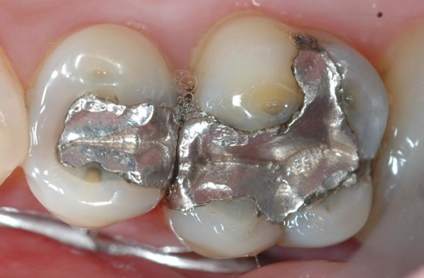 dental_mercury-600x394